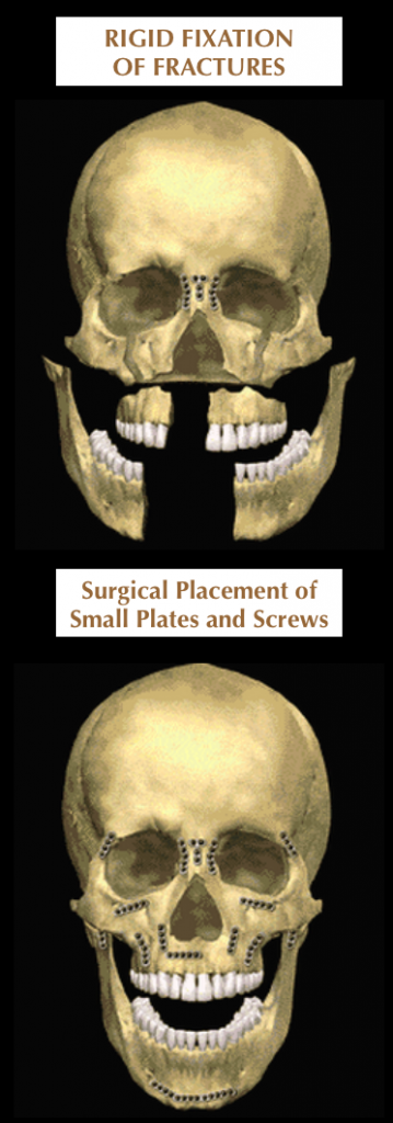 rigid fixation of facial fractures
