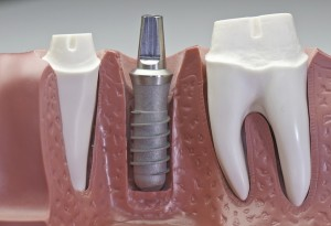 titanium post dental implant